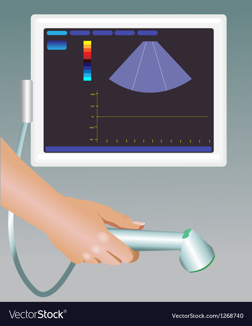 Ultrasound vector image