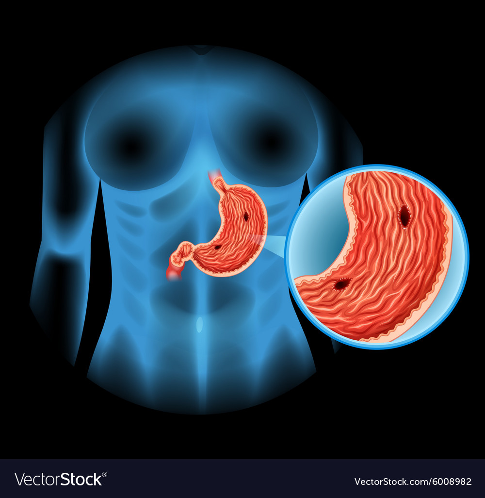 stomach ulcer diagram in human vector 6008982 stomach ulcer diagram in human royalty free vector image