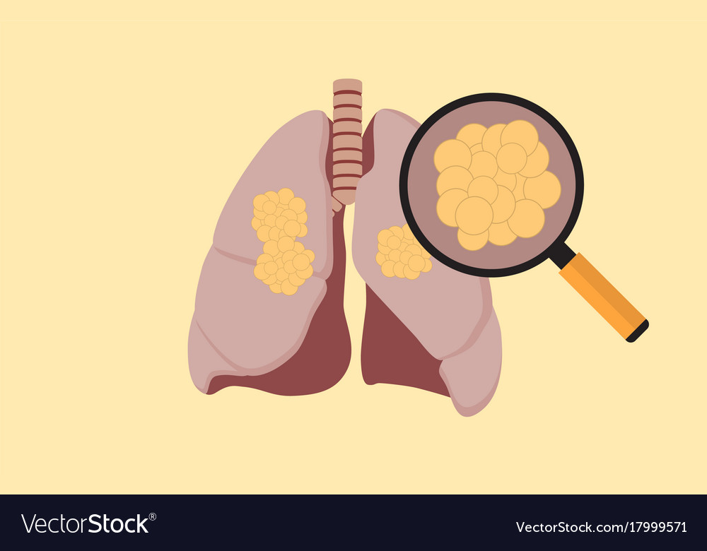 Lung cancer with cancer cell on the lung and vector image