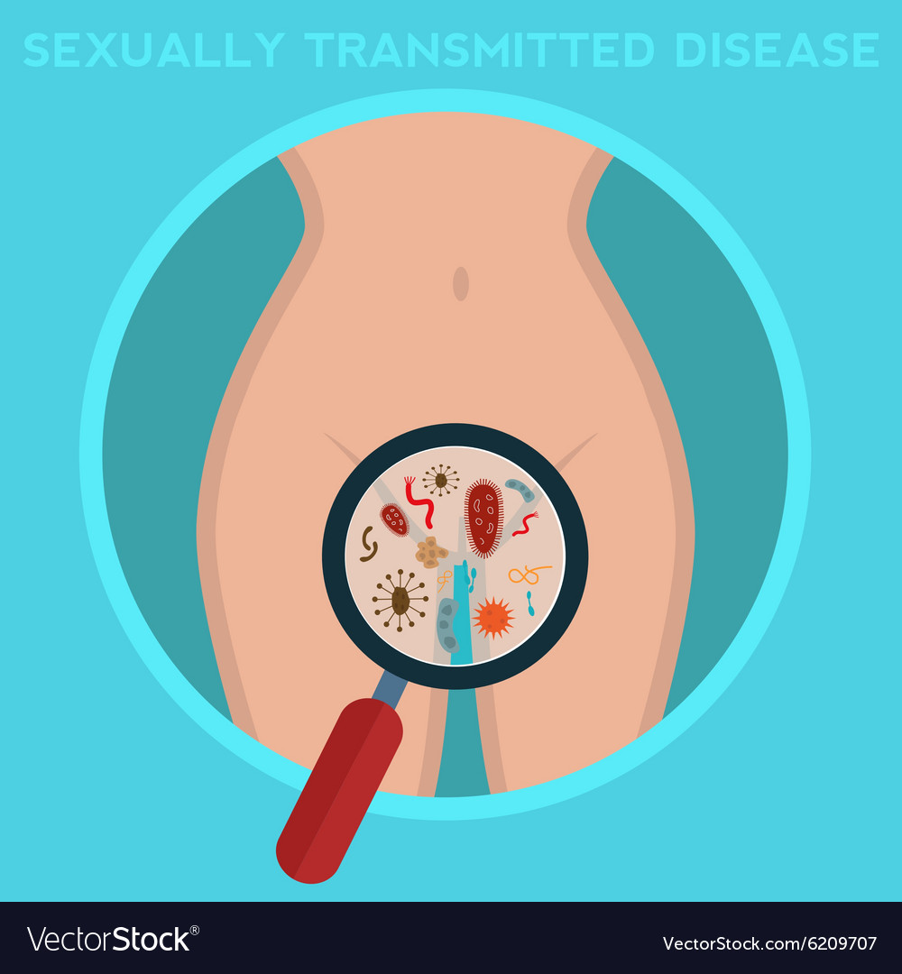 an overview of chlamydia a common sexually transmitted infection of the urogenital tract in the unit Is the most common bacterial sexually transmitted infection (sti) and results in substantial morbidity and economic cost worldwide the.