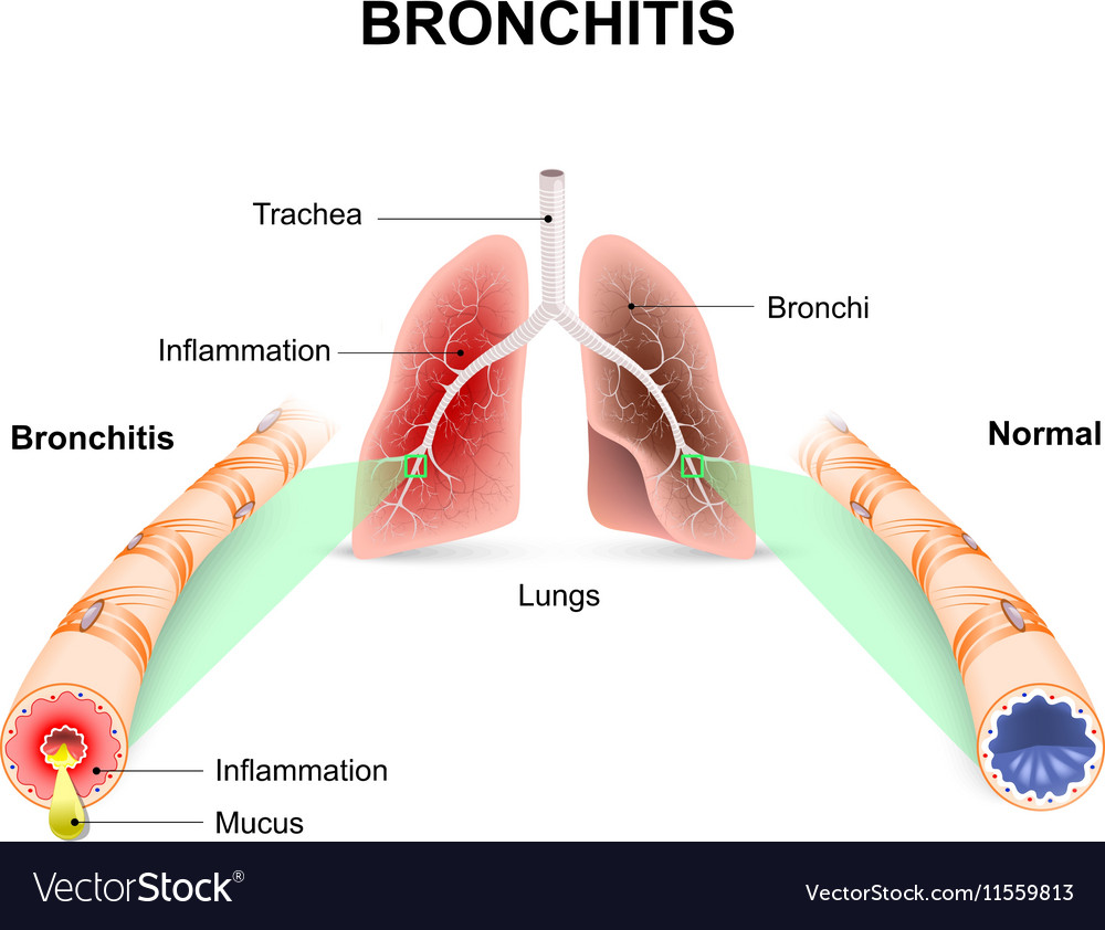 an analysis of bronchitis an inflammation of the bronchi