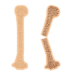 healthy bone and broken bone with osteoporosis vector image vector image