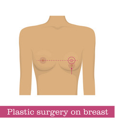 Plastic surgery nipple uplift infographic vector