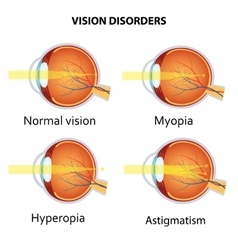 Common vision disorders vector image