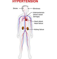 Hypertension vector