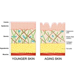 Younger skin and aging skin vector