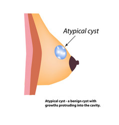 atypical cyst of the breast world breast cancer vector image vector image