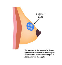 Fibrous cyst breast world breast cancer day tumor vector