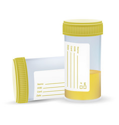 Urine test in a plastic jar isolated on a white vector
