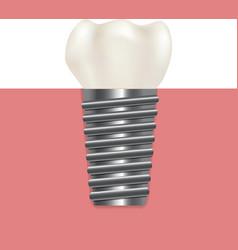Realistic human dental implant vector