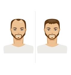 Hair loss and healthy hair vector