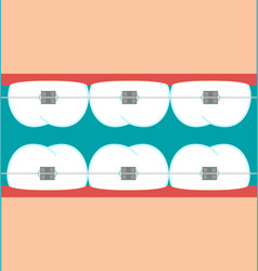 Teeth braces flat vector