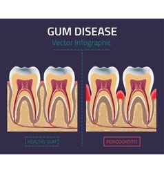 Gum disease vector