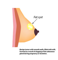 Fat cyst breasts world breast cancer day tumor vector