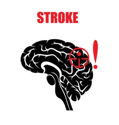 Stroke vector