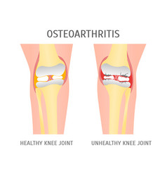 cartoon osteoarthritis healthy and unhealthy knee vector image