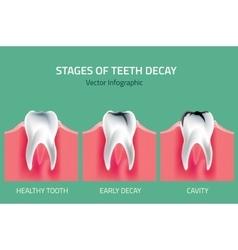 Teeth anatomy vector
