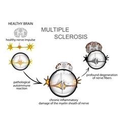 multiple sclerosis Neurology vector image