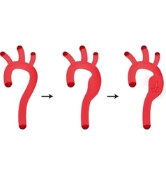 Ruptured aortic aneurysm vector