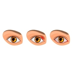 eye suffering from conjunctivitis and styes vector image vector image