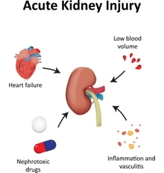 Acute kidney injury diagram renal vector