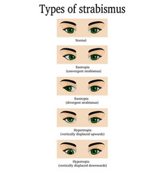 Types of strabismus vector