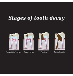 Stages of development of dental caries vector