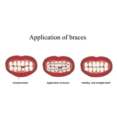 The use of braces crooked teeth orthodontics vector