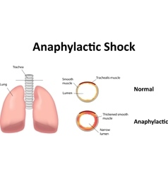 Anaphylactic Shock Lungs vector image