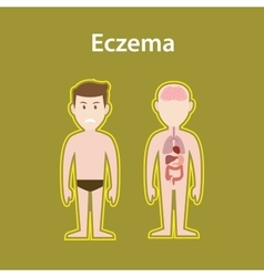 Eczema sick with human body full vector