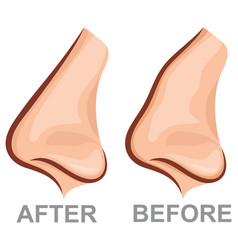 nose before and after rhinoplasty plastic surgery vector image
