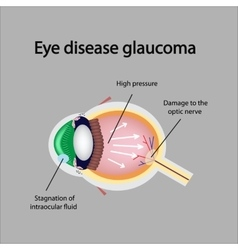 Glaucomatous eye Violations causing glaucoma vector image