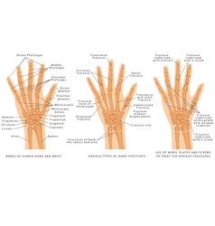Hand fractures vector image