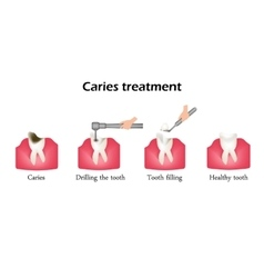 Treatment of caries drilling a tooth sealing of vector