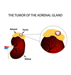 a tumor of the adrenal gland structure of the vector image
