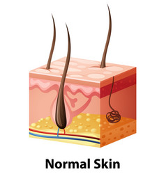 Diagram showing normal skin vector