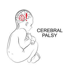 Cerebral palsy neurology vector