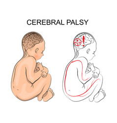 Cerebral palsy neurology vector