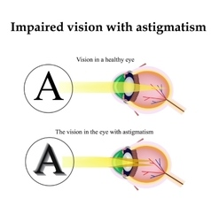 Astigmatism As the eye can see with astigmatism vector image vector image