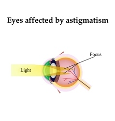 Impaired vision with astigmatism As astigmatism vector image vector image
