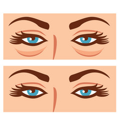 Woman eyes before and after cosmetic procedure vector