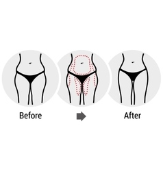 Plastic surgery hips vector