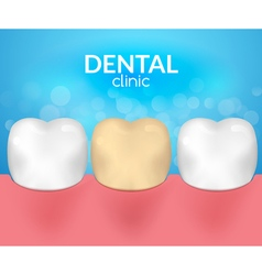 Dental desease clinic concept Tooth healthcare vector image