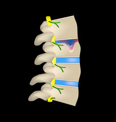 Hernia schmorl intervertebral disc side view spine vector