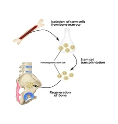 Stem cells from bone marrow are used for bone vector