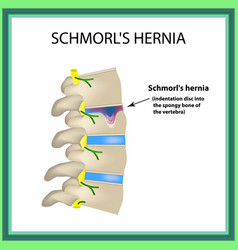 hernia schmorl intervertebral disc side view spine vector image