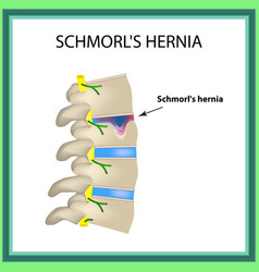 Hernia schmorl intervertebral disc side view spine vector