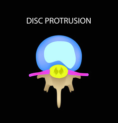 Disc protrusion top view spine infographics on a vector