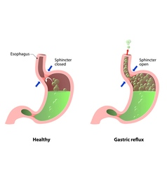 Stomach disease vector image