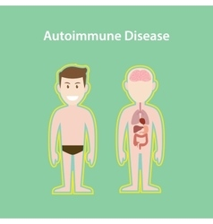 autoimmune disease system with vector image vector image